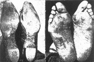 Barefoot Training