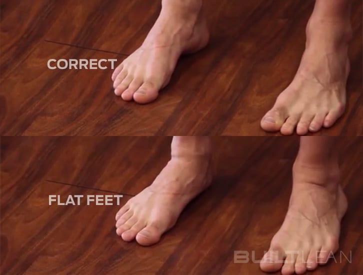 flat-feet-posture