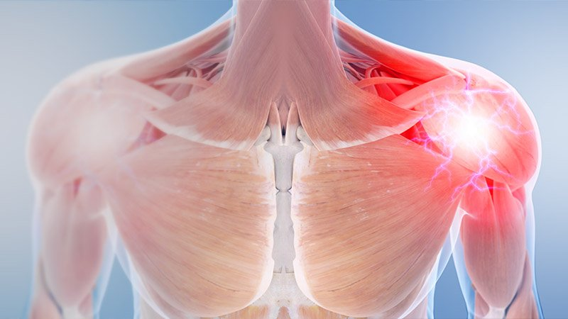 7 Best Exercises To Treat Amp Prevent Biceps Tendinitis